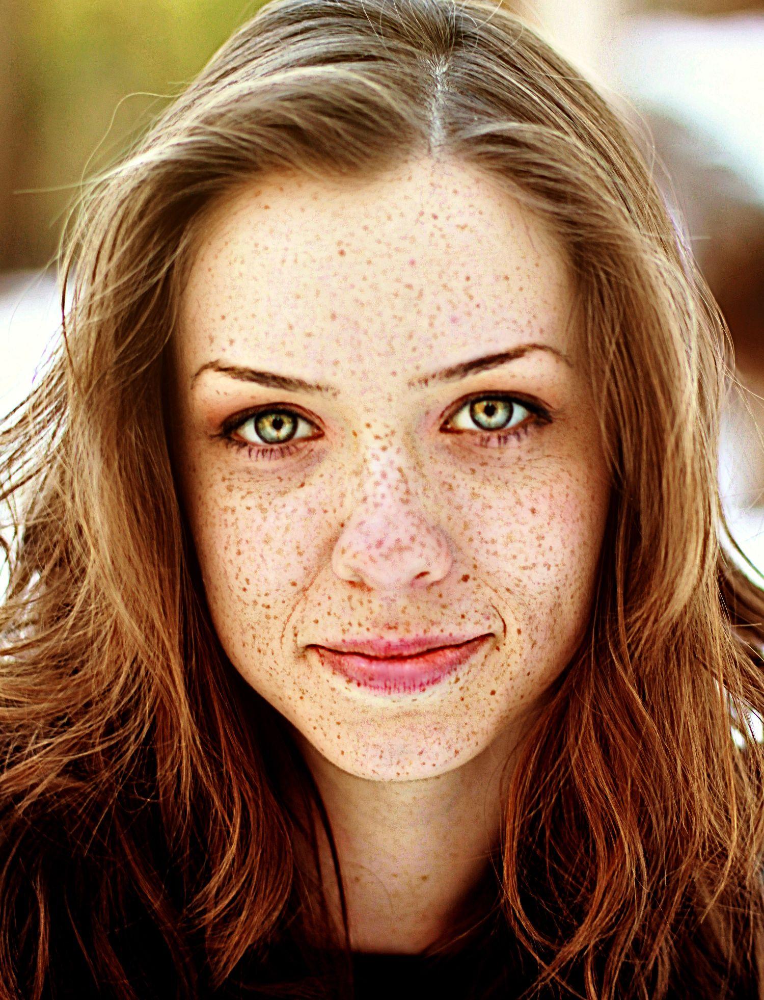 Violazione di pigmentazione di pelle al bambino di una fotografia