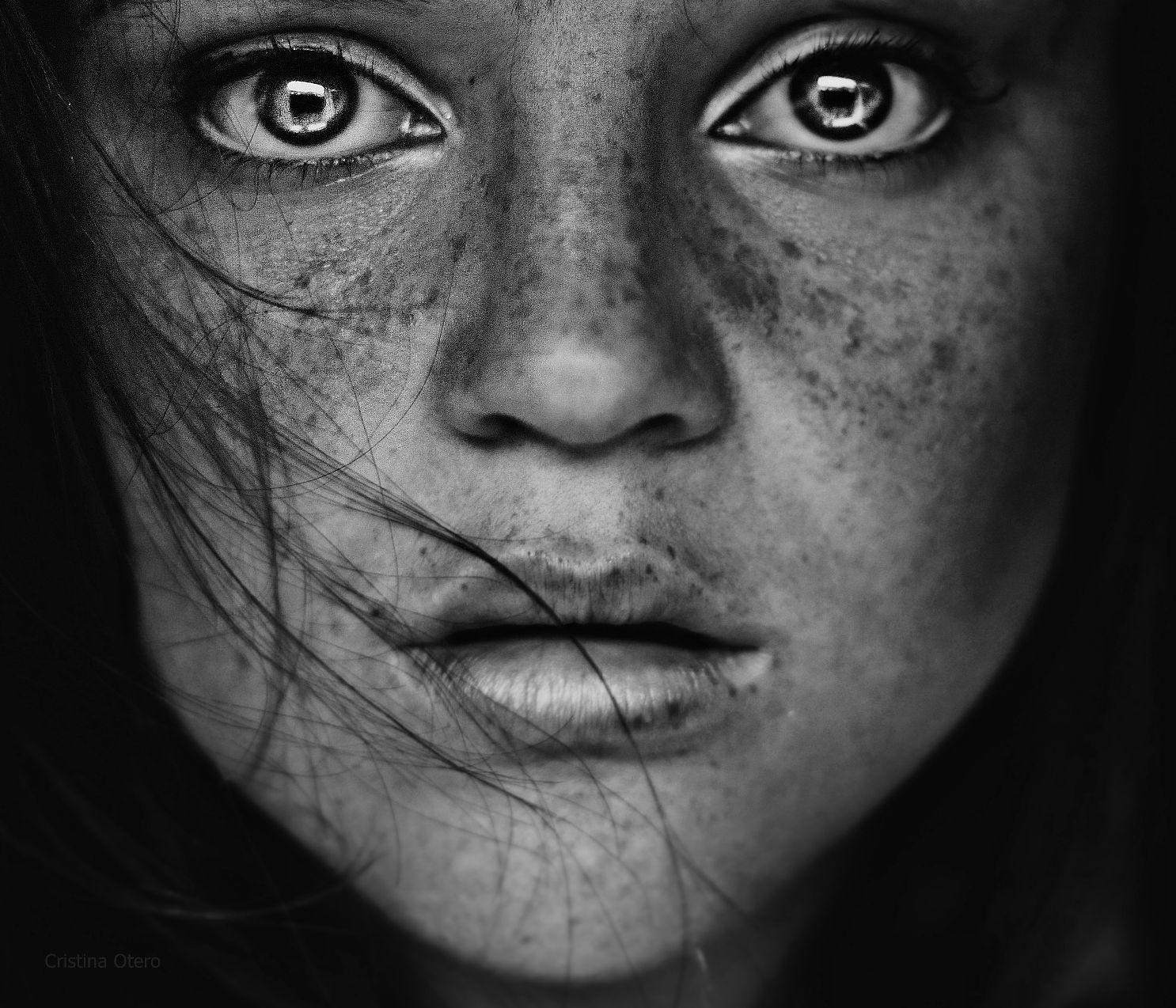 Con che è possibile togliere posti di pigmentary su una faccia di video