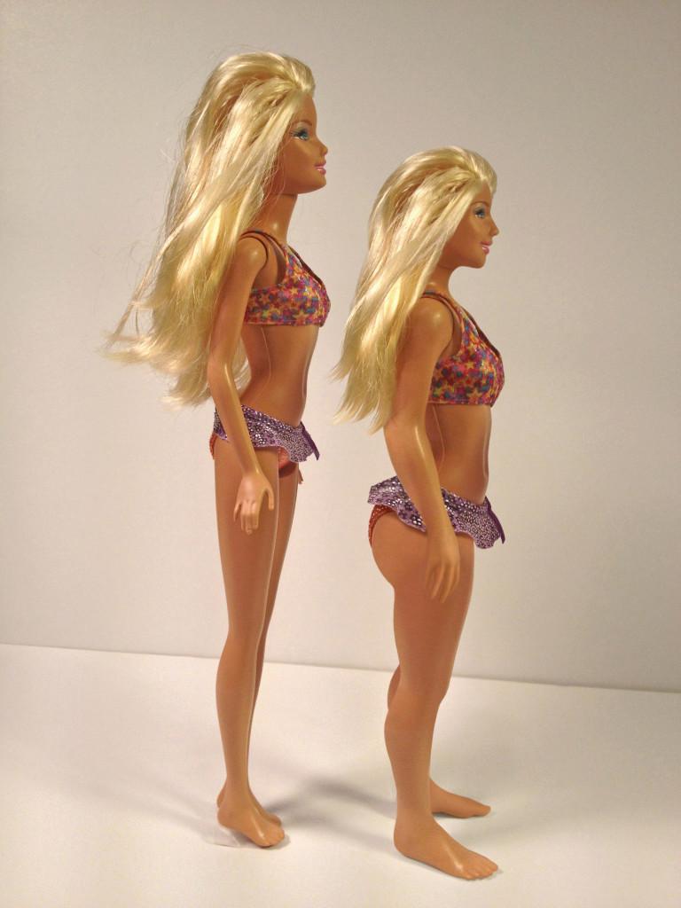 Barbie prima e dopo la cura